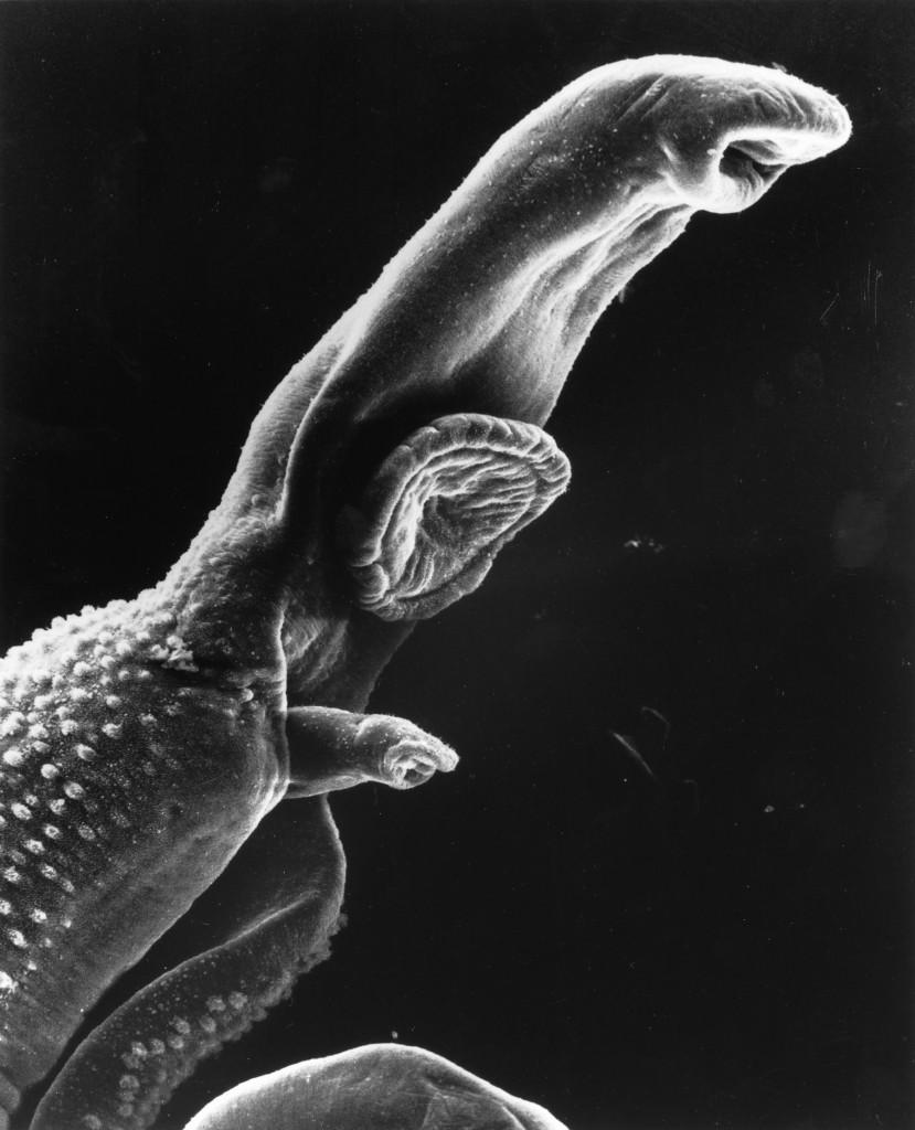 Bild av en schistosomaparasit, förstorad x256 i svepelektronmikroskop.